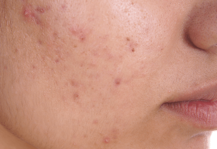 Acne treatment at Lumiere Clinic, Manchester