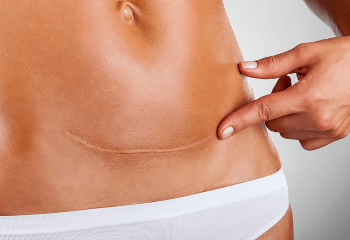 Scar and stretch mark reduction at Lumiere Clinic, Manchester